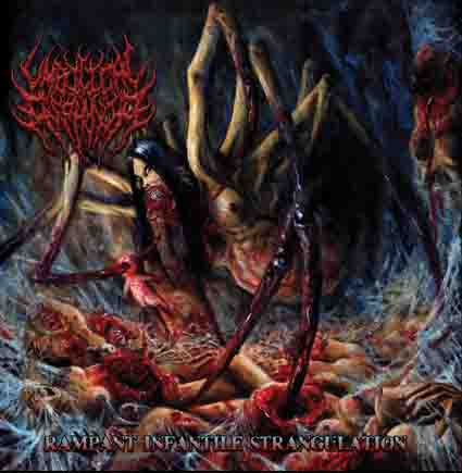 Umbilical Asphyxia- Rampant Infantile Strangulation CD on Brutal Mind