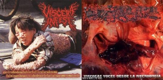 Viscera Infest / Paracoccidioidomicosis.... Split CD on Obliteration Rec.