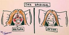 To Get An Epidural Or Not....