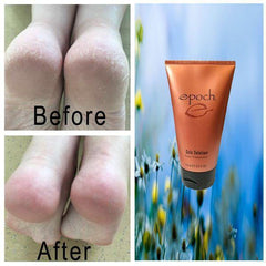 Epoch® Sole Solution® Foot Treatment - Tara Lynn's Boutique