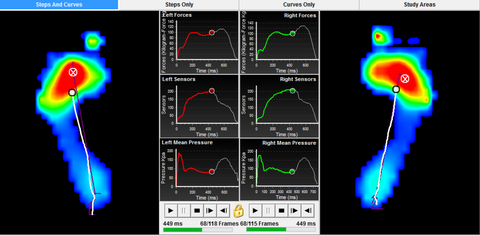 Image showing data from a foot pressure plate reading