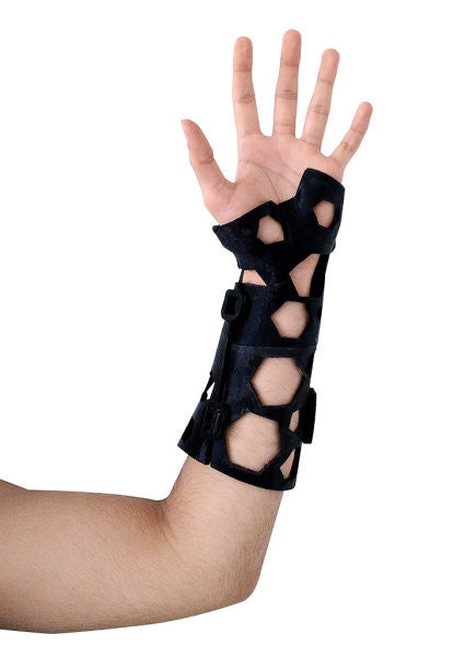 3D Printed Casts Are Replacing Plaster