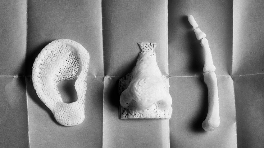 3D Printing will Revolutionize Health Care