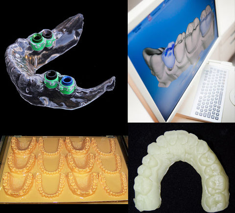Dental 3D printer & Dental 3D printing with EnvisionTec