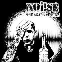 "Noi!se ""The Scars We Hide"" LP"