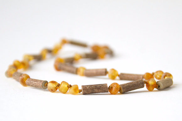 Hazelwood with Baltic Amber for Infant to Adult Jewelry -Necklace, Bracelet & Anklet -Medium, 7