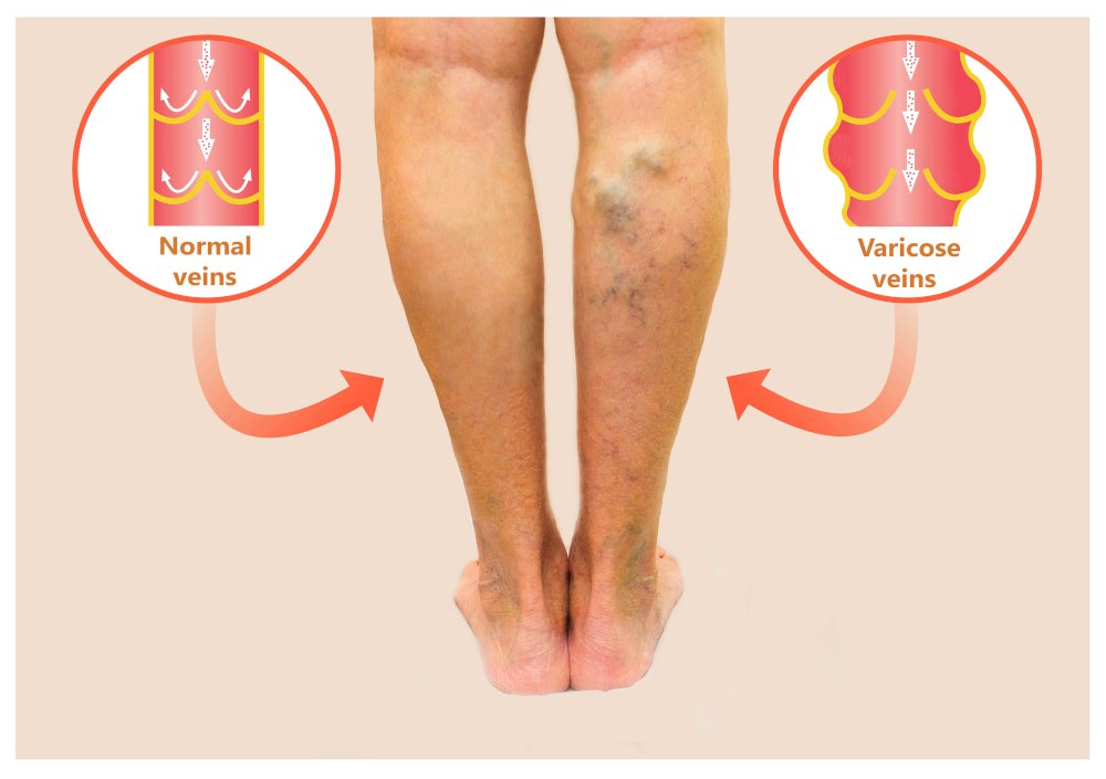 Dong Quai supports Varicose Veins and Leg Pain