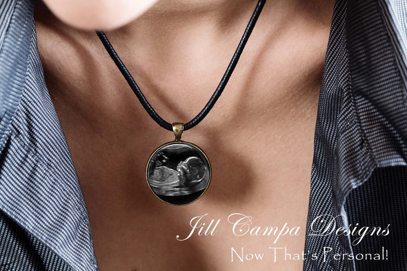 Baby SONOGRAM Necklace, Ultrasound Pendant - leather cord necklace - Jill Campa Designs - Now That's Personal!
