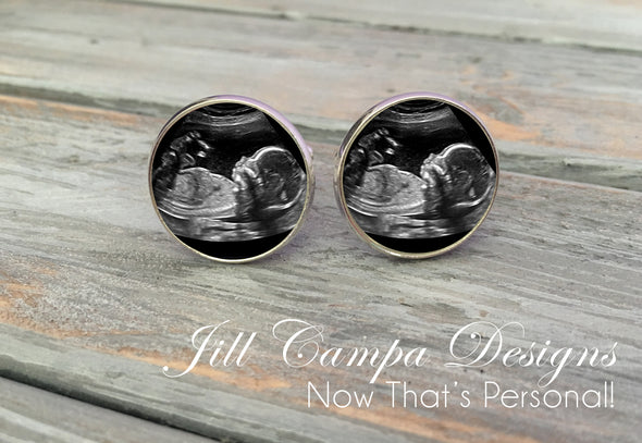 Sonogram cuff links, Ultrasound cuff links, custom photo cufflinks - Jill Campa Designs - Now That's Personal!  - 2