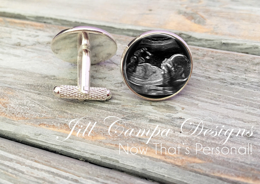 Sonogram cuff links, Ultrasound cuff links, custom photo cufflinks - Jill Campa Designs - Now That's Personal!  - 1