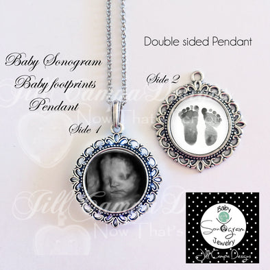 SONOGRAM NECKLACE - Baby footprint necklace - 2 sonograms - fancy edge - 2 sided baby sonogram pendant - Jill Campa Designs - Now That's Personal!