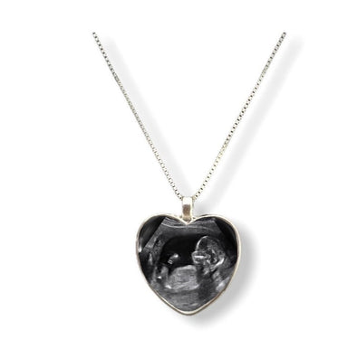 BABY SONOGRAM Heart Shaped Necklace