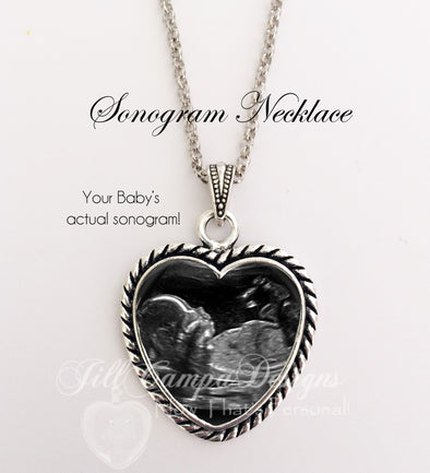 Sonogram Necklace, rope heart shape, Your baby's sonogram on a necklace - Jill Campa Designs - Now That's Personal!