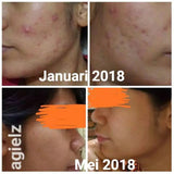 Isotretinoin Accufin for Severe Acne Softgel capsules