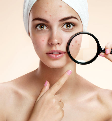 Blog Feed Article Feature Image Carousel: Pimples: the Breakout Breakdown