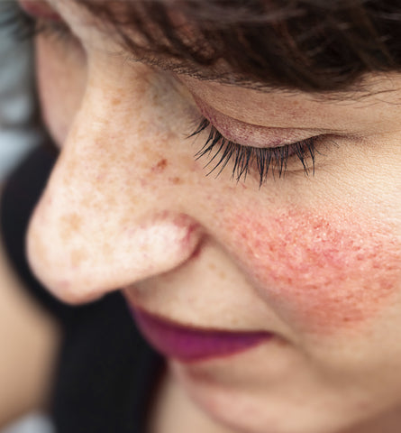 Blog Feed Article Feature Image Carousel: Blotchy Skin or Rosacea – What's the Difference?