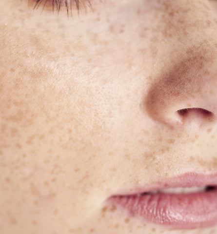 Blog Feed Article Feature Image Carousel: What Are Your Freckles Telling You?