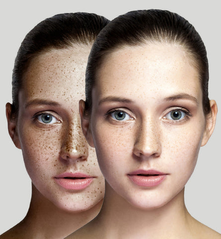 Blog Feed Article Feature Image Carousel: Benefits of Green Tea for Sun-Damage