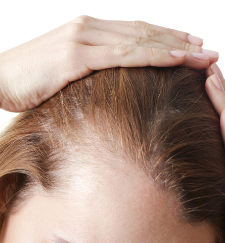 Blog Feed Article Feature Image Carousel: The Best Natural Shampoos for Hair Loss