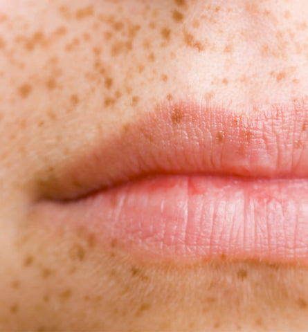Blog Feed Article Feature Image Carousel: Do Freckles on Lips Spell Sun Damage?