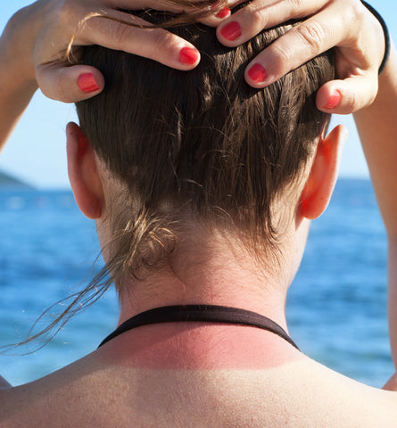 Blog Feed Article Feature Image Carousel: Top Areas We Forget to Apply Sunscreen