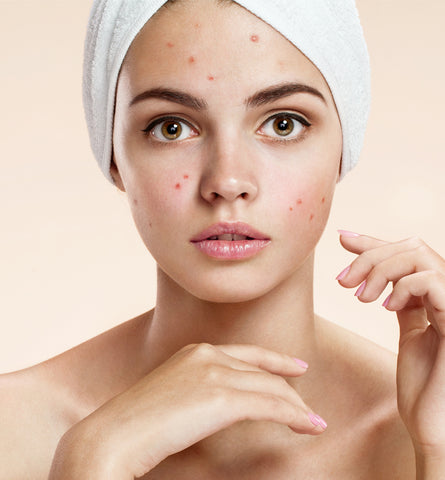 Blog Feed Article Feature Image Carousel: Acne Treatment Basics: Salicin Vs. Salicylic Acid