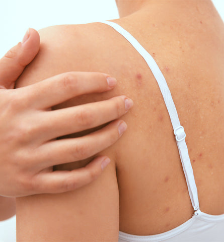 Blog Feed Article Feature Image Carousel: The Best Natural Body Acne Treatments