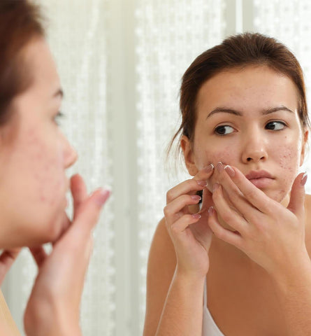 Blog Feed Article Feature Image Carousel: 8 Ingredients That Can Fade Acne Scars