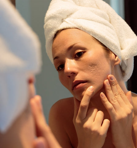 Blog Feed Article Feature Image Carousel: How to Fade Acne Scars