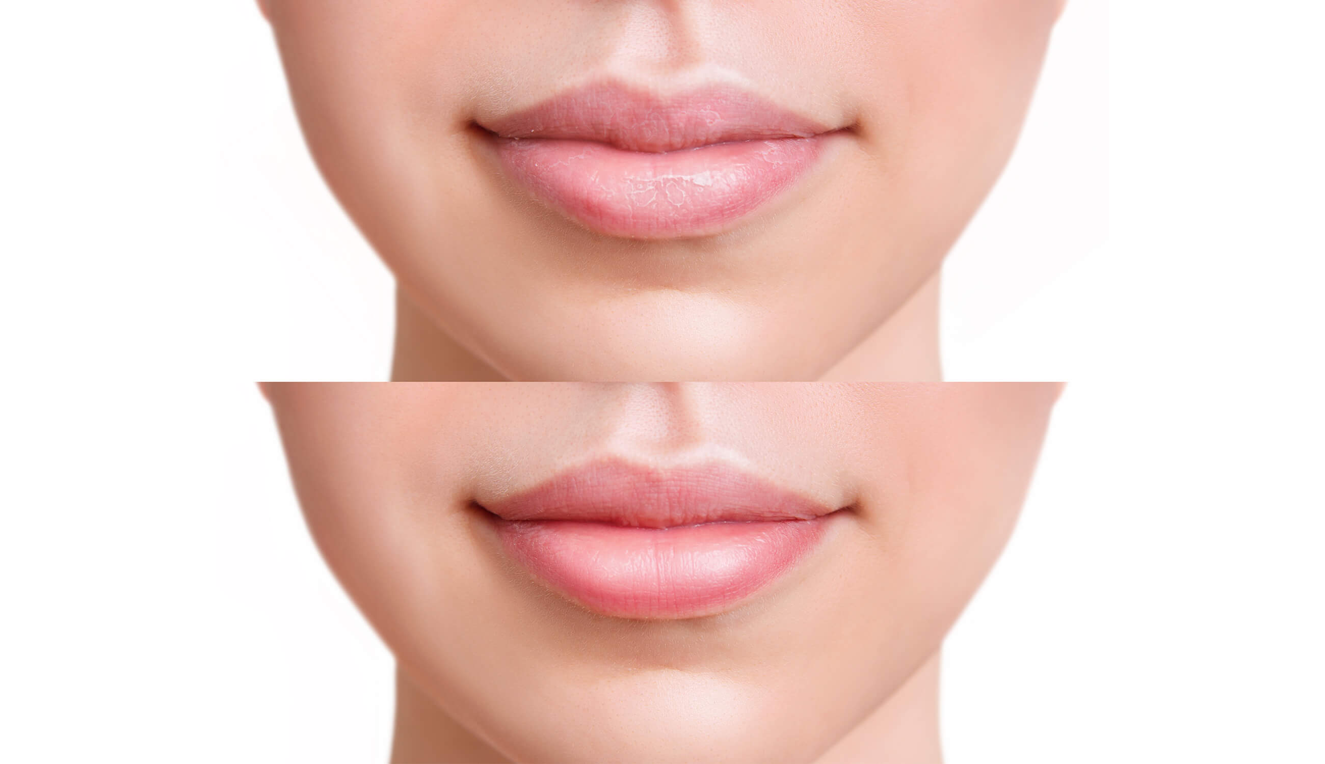 Before after of using lip scrub