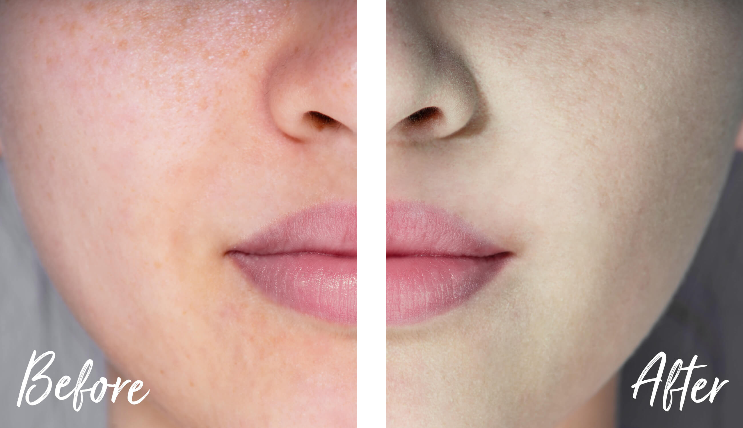 Skin corrector before after
