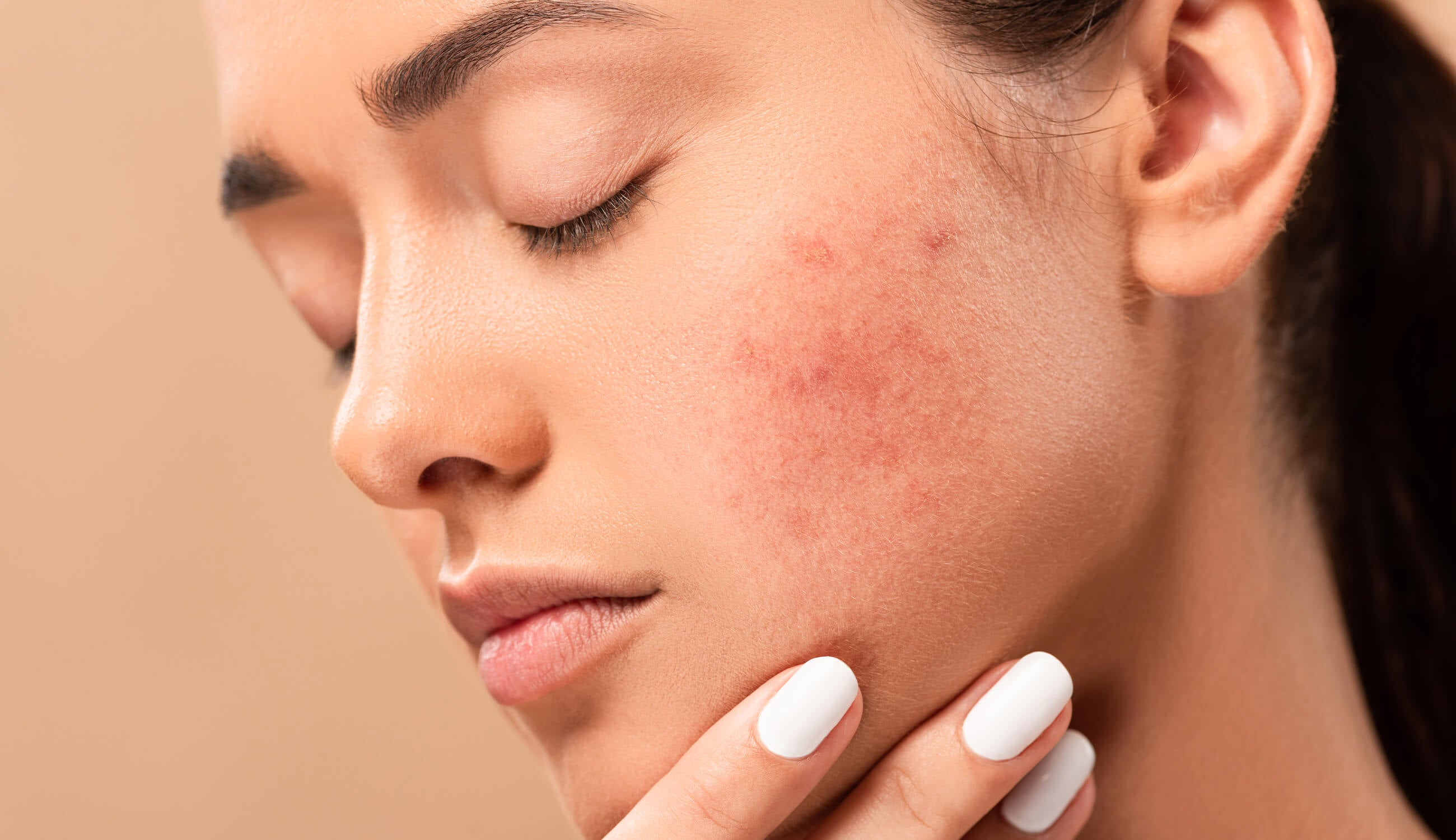 Woman's skin with redness