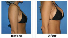 MUST UP Breast Enhancement Cream
