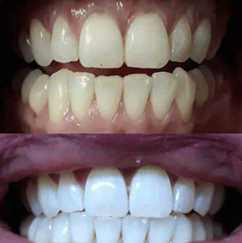 Home Teeth Whitening Kit (Just 10 minutes a day!)