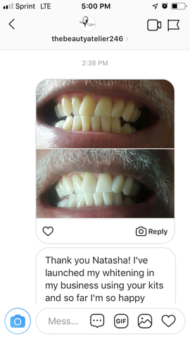 Miami Teeth Whitening