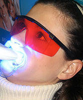 LED Teeth Whitening Machine ONLY