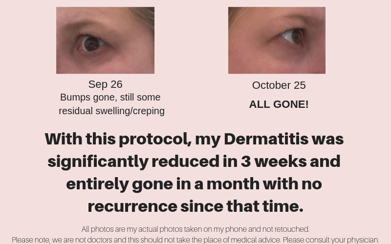 with this protocol, my dermatitis was significantly reduced in 3 weeks and entirely gone in a month with no recurrence since that time.