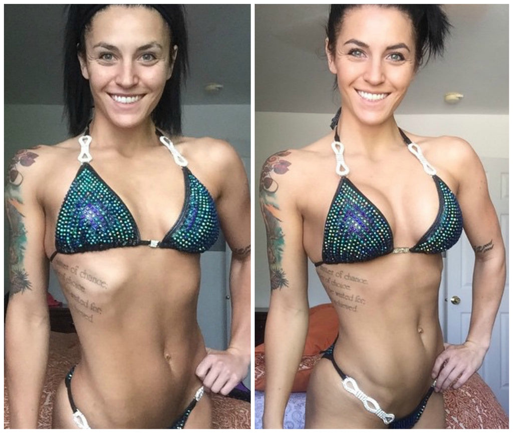 Boob Job for bikini competitor, breast augmentation in the fitness industry, breast augmentation before and after