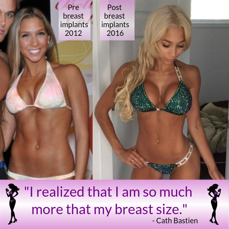 Breast Implant illness Crystal Hefner blog Angel Competition Bikinis npc bikini competition breast augmentation
