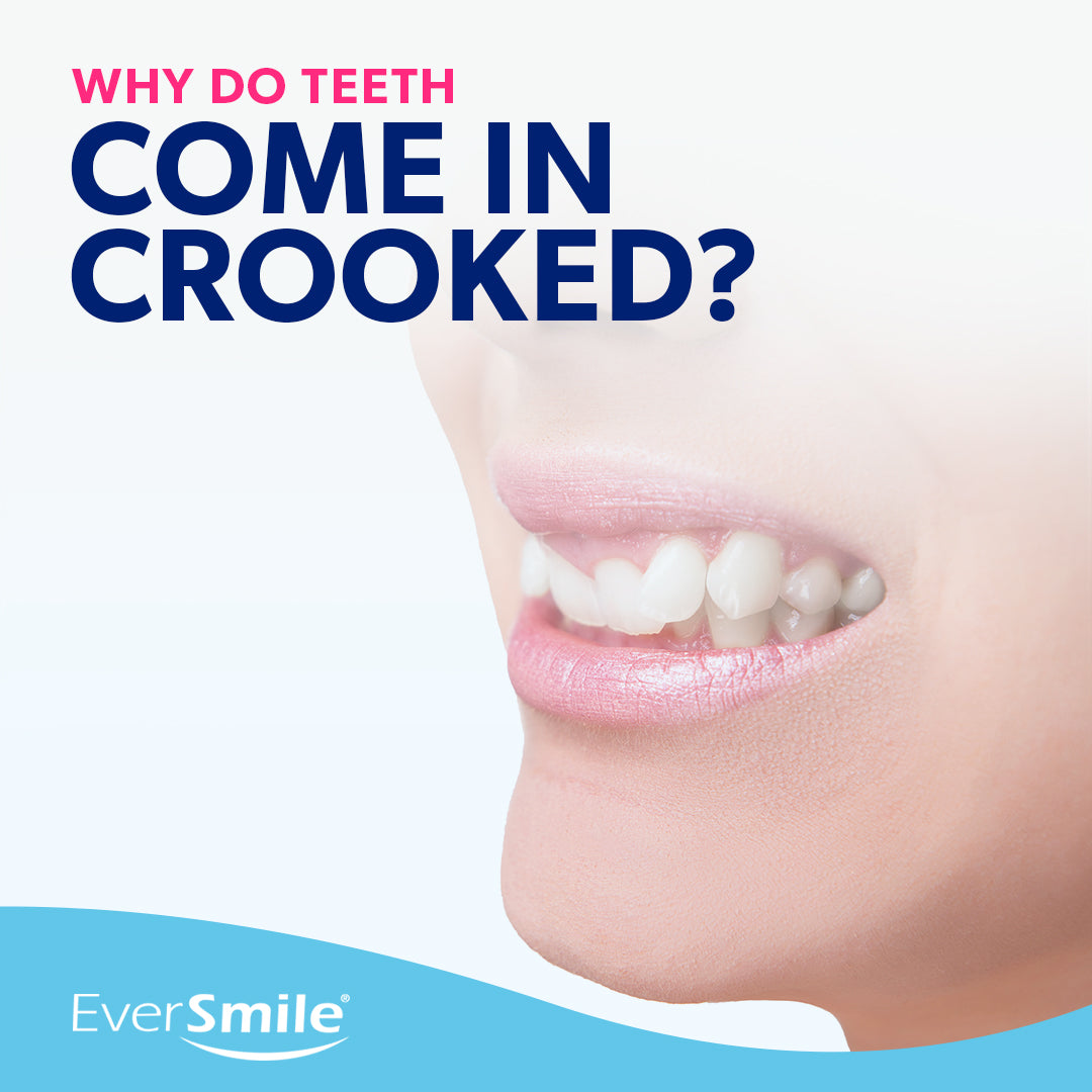 Why Do Teeth Come in Crooked?