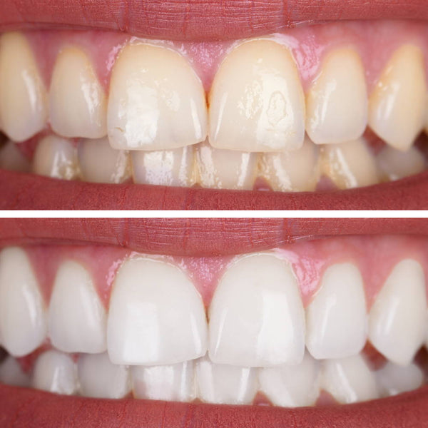 Whitening Your Teeth: How to Get and Stay Stain-Free!