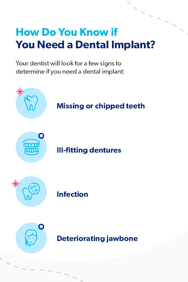 How do you know if you need a dental implant? [list]