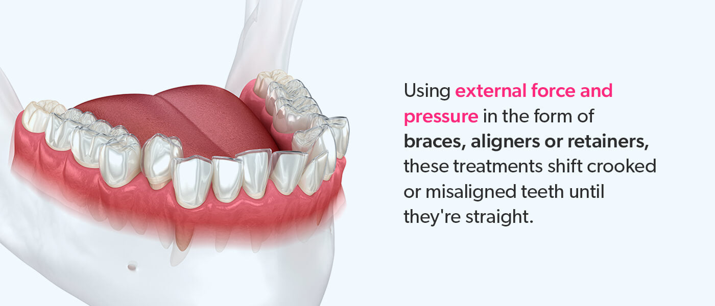Braces, aligners and retainer treatments use external force and pressure to shift teeth.