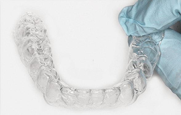 Clear Aligner With WhiteFoam