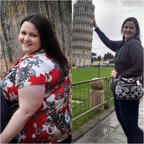 Kim's Journey: Losing & Regaining Weight after Bariatric Surgery