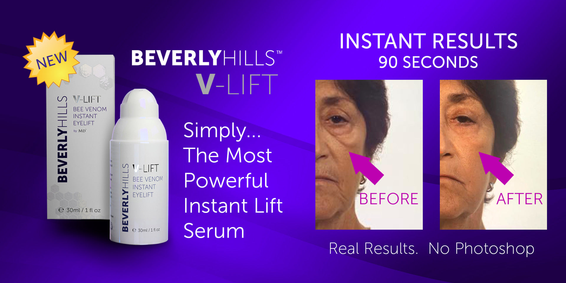 Instant-Facelift-90-Seconds-Bee-Venom-Beverly-Hills-V-Lift
