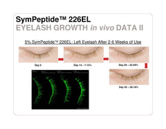 MD3 KL Lash X-Treme Advanced - Lash Conditioner and Growth Serum - 0.17oz/5ml - AS FEATURED TWICE IN VOGUE!