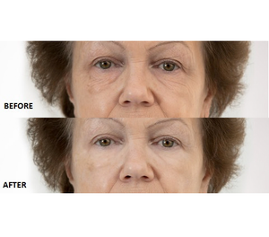 Beverly Hills - Instant Facelift & Eye Tuck