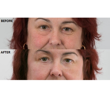 Load image into Gallery viewer, Beverly Hills - Instant Facelift & Eye Tuck