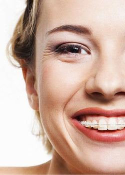 How to Clean your Teeth with Braces?